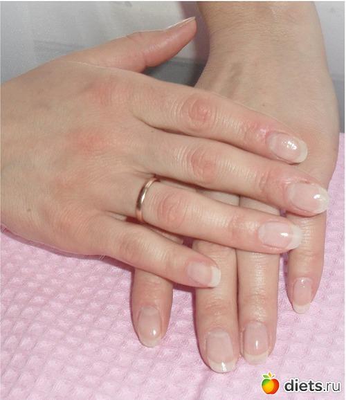 Как спасти слоящиеся ногти, простой и действенный рецепт